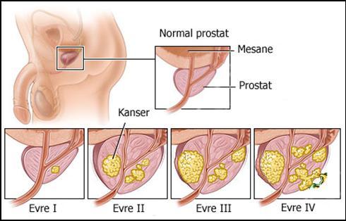 Prostatiti tedavi ediyoruz. Prostatit belirtileri